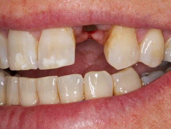dentist bozeman dental implant