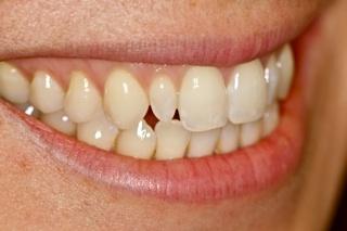 dental restoration Bozeman dentist