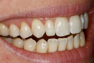 dental bonding dentist near Belgrade MT