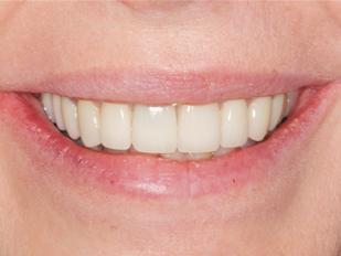 perfect smile dentist near Big Sky