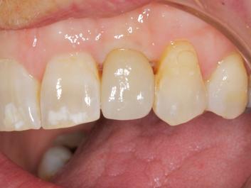 implant dentistry Bozeman