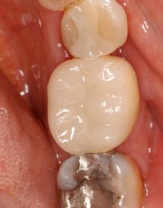 dental crowns Big Sky dentist