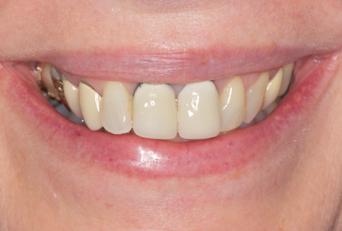 cosmetic dentist in Bozeman