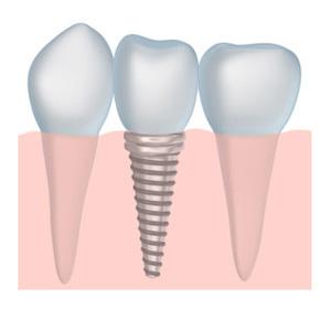 dental implants dentist Belgrade MT