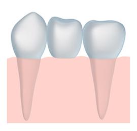 dental bridges with a dentist Belgrade MT